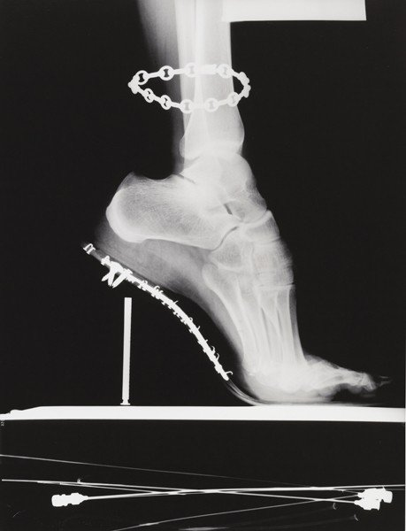 6: HELMUT NEWTON, X – Ray with chain, Paris, 1994