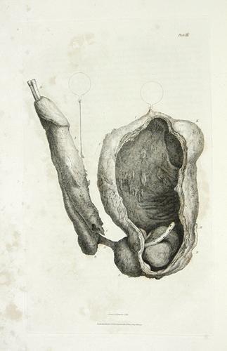 5B: Bell.Engravings..Specimens of Morbid Parts