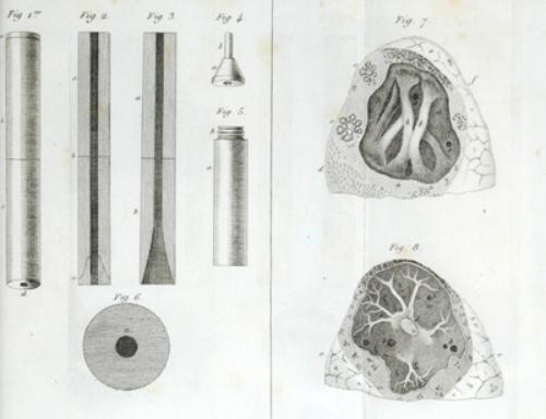 23B: Laennec.De l'Auscultation Médiate,2v,1819