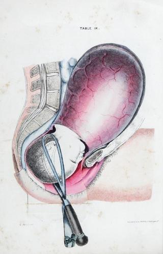 16A: Spratt (G.) Obstetric Tables