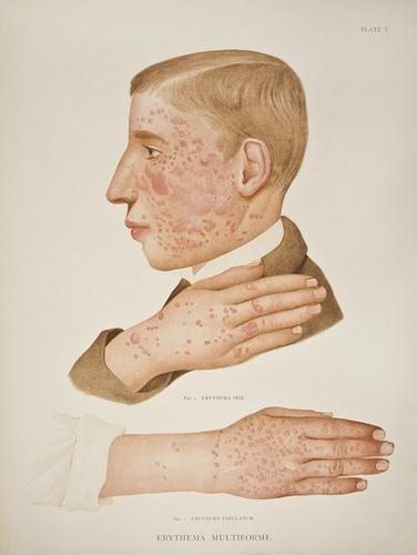 15: Crocker (H. Radcliffe) Atlas of the Diseases of th