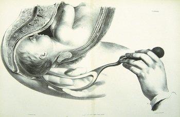13C: Principles & Practice of Obstetric Medicine