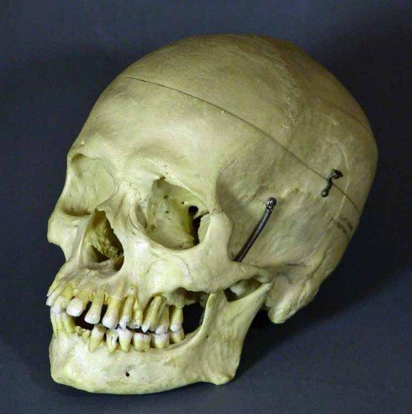225: Real Human Medical / Dental Skull  Clay Adams  Co.