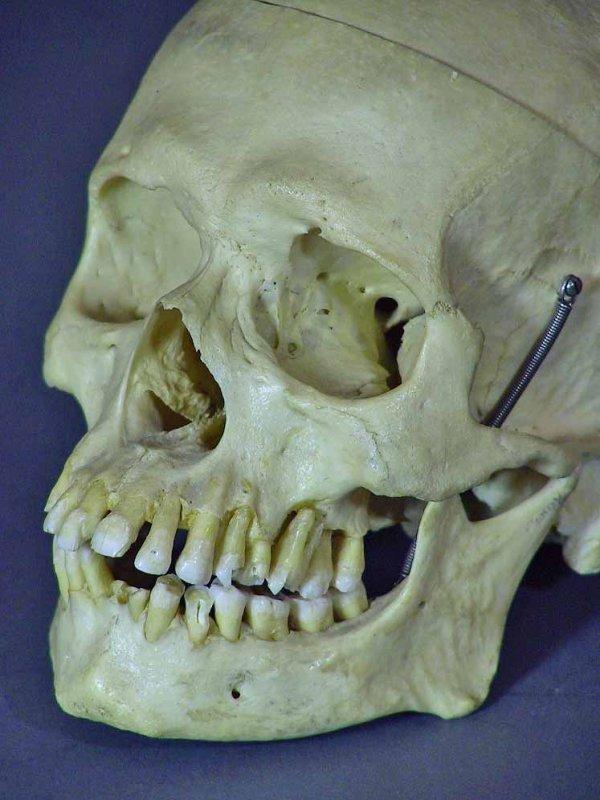 225: Real Human Medical / Dental Skull  Clay Adams  Co. - 2