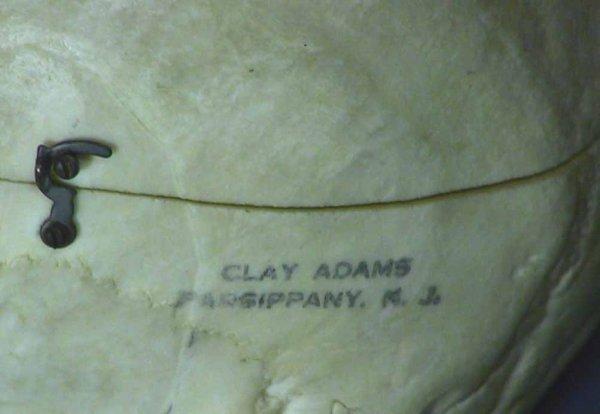 225: Real Human Medical / Dental Skull  Clay Adams  Co. - 3