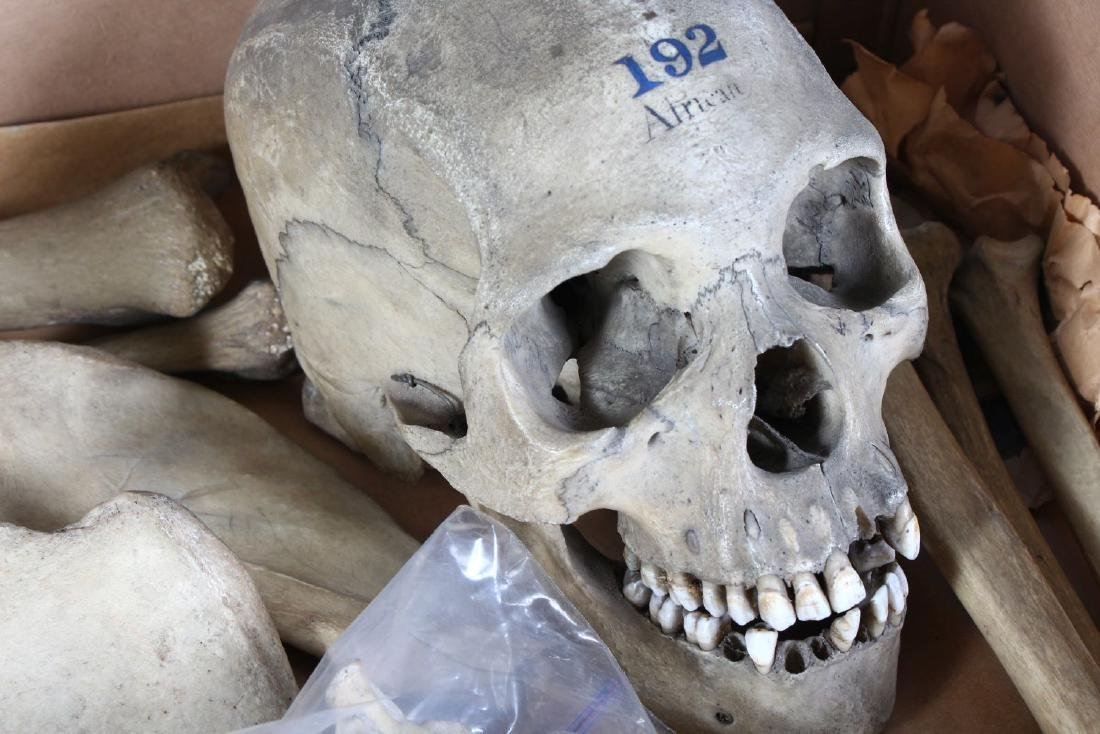 A PART HUMAN SKELETON WITH ARTICULATED SKULL, stamped - 2