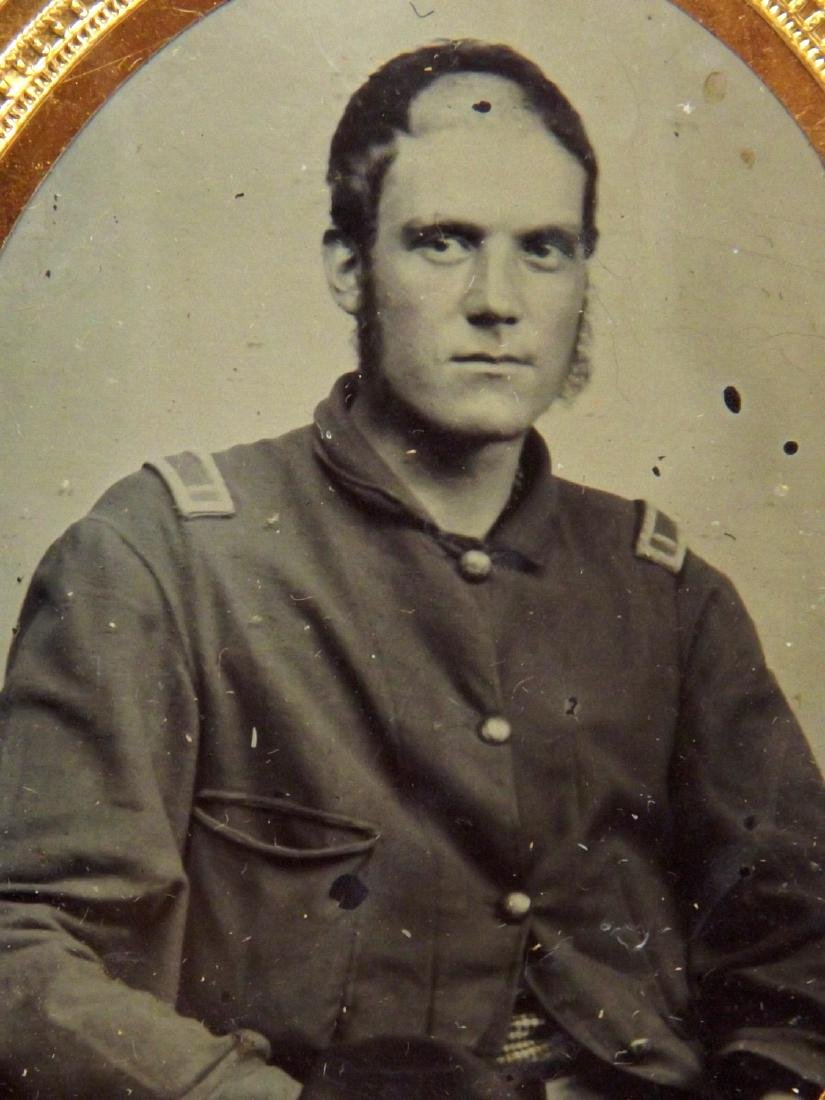 1/9 plate Tintype Image of Civil War Soldier Wounded in - 3
