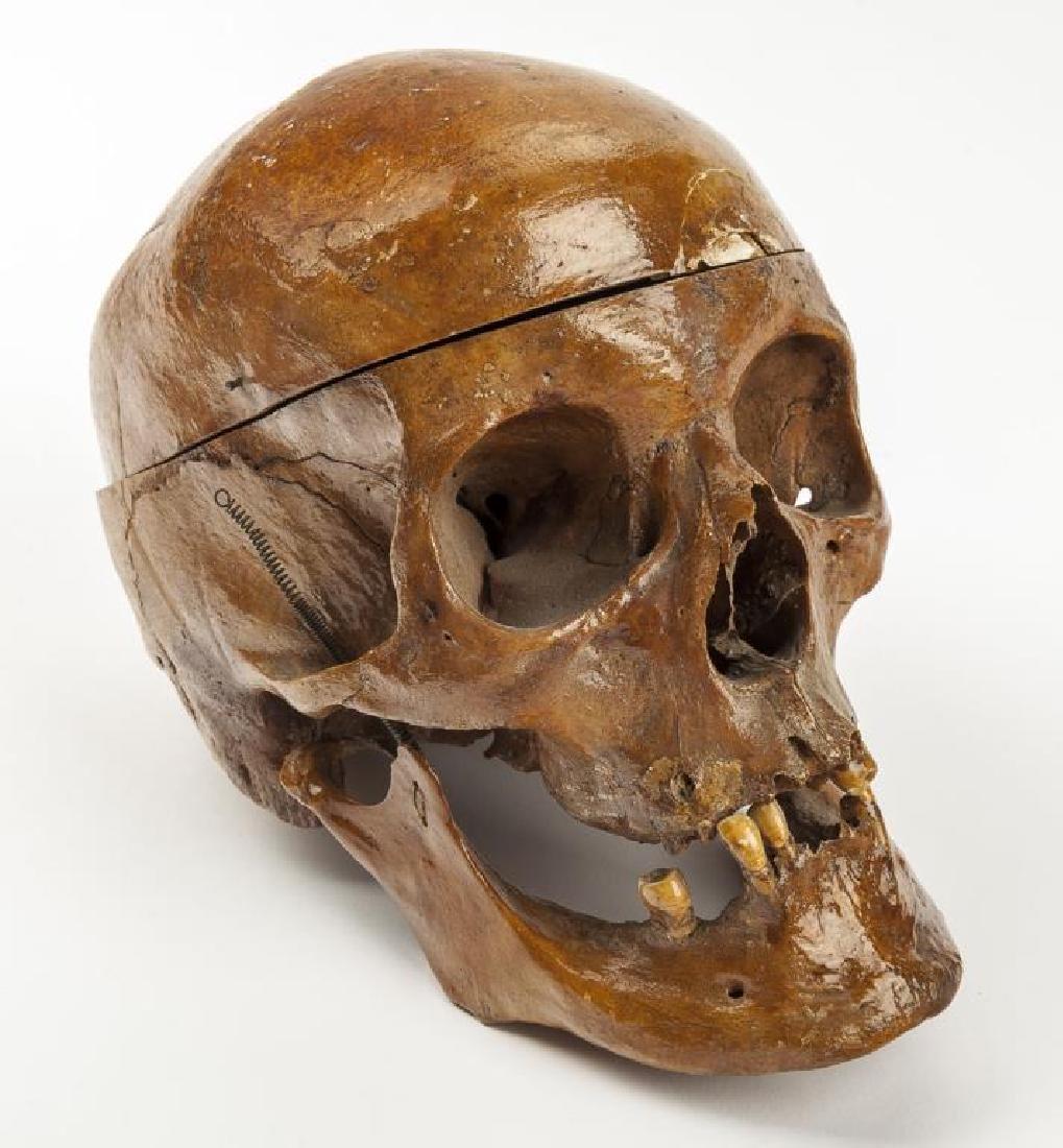 Vintage Human Skull for Medical Study