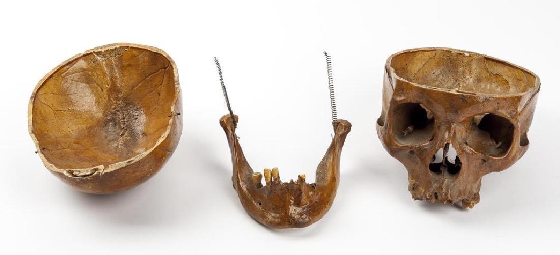 Vintage Human Skull for Medical Study - 4