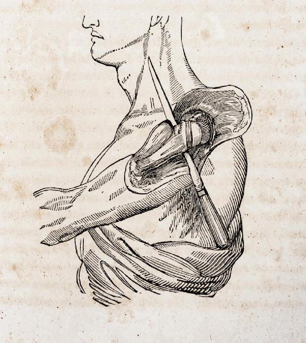4 19th C. Medical Books incl. Yarnall Surgical - 9