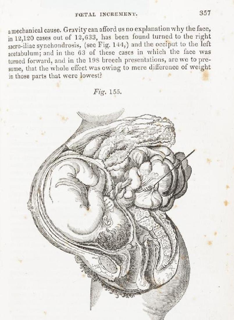 4 19th C. Medical Books Incl. Yarnall Surgical - 10