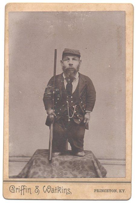 Civil War Soldier CDV Dwarf Rare Photo Rifle Armed Pic