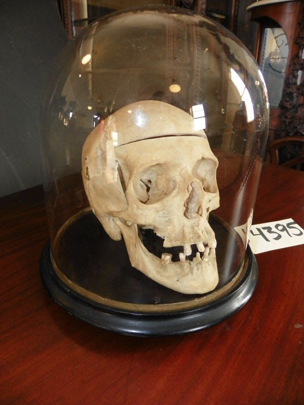 511: HUMAN SKULL IN GLASS DOME FOR MEDICAL USE 4395