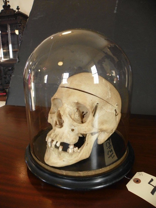 511: HUMAN SKULL IN GLASS DOME FOR MEDICAL USE 4395 - 2