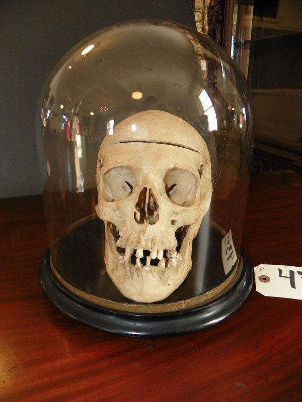 511: HUMAN SKULL IN GLASS DOME FOR MEDICAL USE 4395 - 3