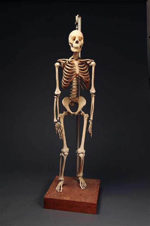 Fine Antique Real Human Skeleton