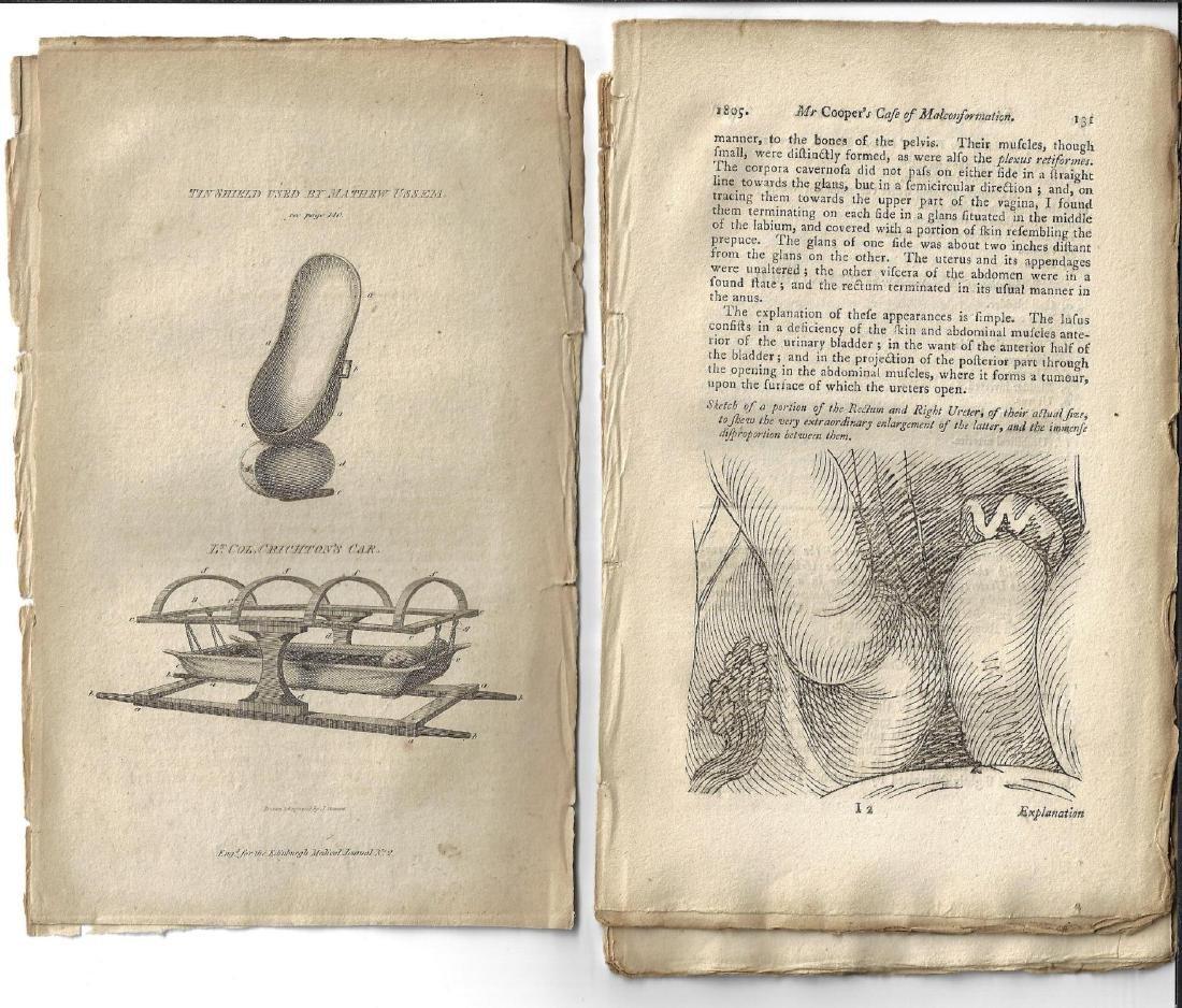 1805 Medical Treatises on Bladder