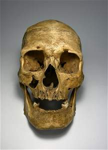 Antique Human Skull with Medical Abnormalities