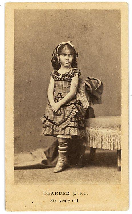 A bearded girl, six years old.