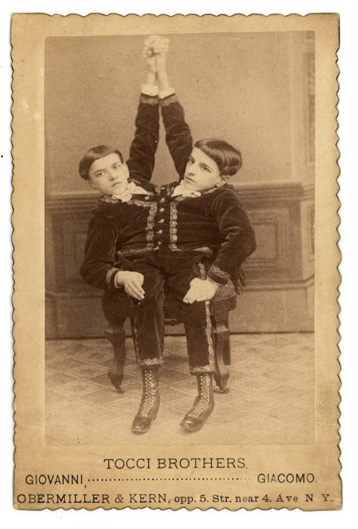 Tocci Brothers, Giovanni and Giacomo, conjoined Siamese