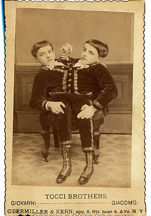 Tocci Brothers, Giovanni and Giacomo, conjoined Siamese - 2