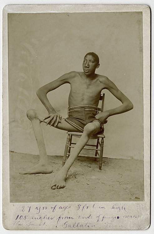 A tall black man with bony knees.