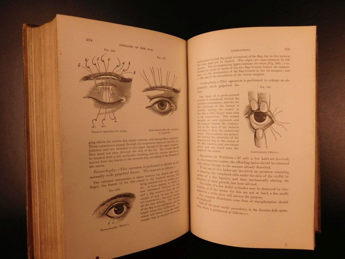 1892 1ed Diseases of Eye Ophthalmology Schweinitz - 10