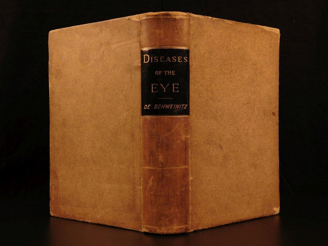 1892 1ed Diseases of Eye Ophthalmology Schweinitz