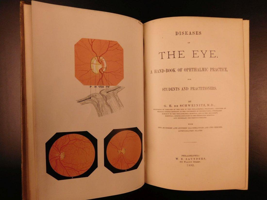 1892 1ed Diseases of Eye Ophthalmology Schweinitz - 2