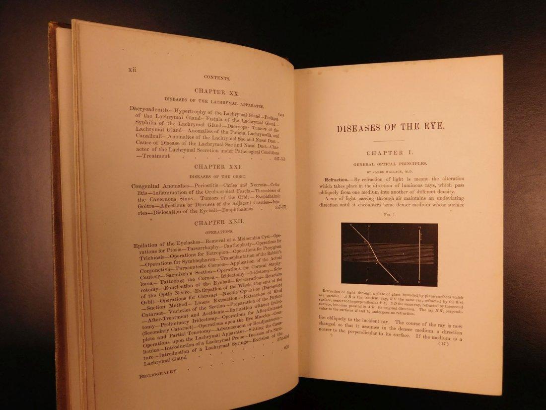1892 1ed Diseases of Eye Ophthalmology Schweinitz - 5