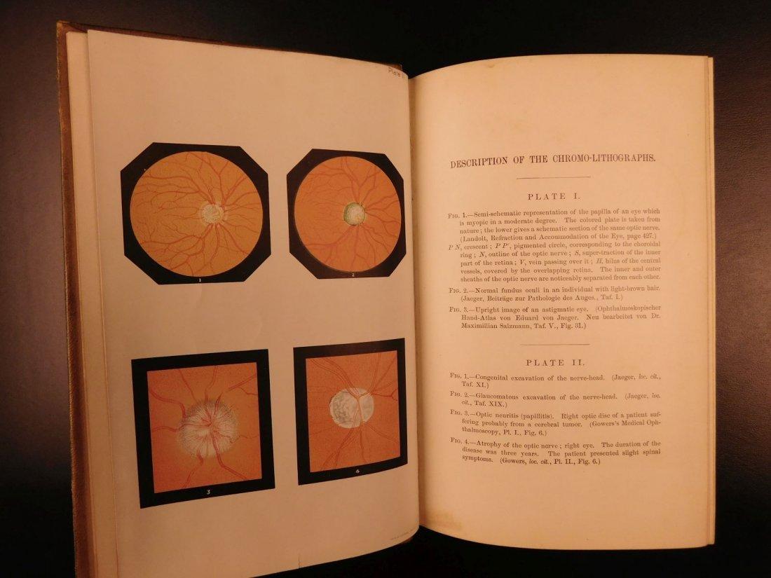 1892 1ed Diseases of Eye Ophthalmology Schweinitz - 6