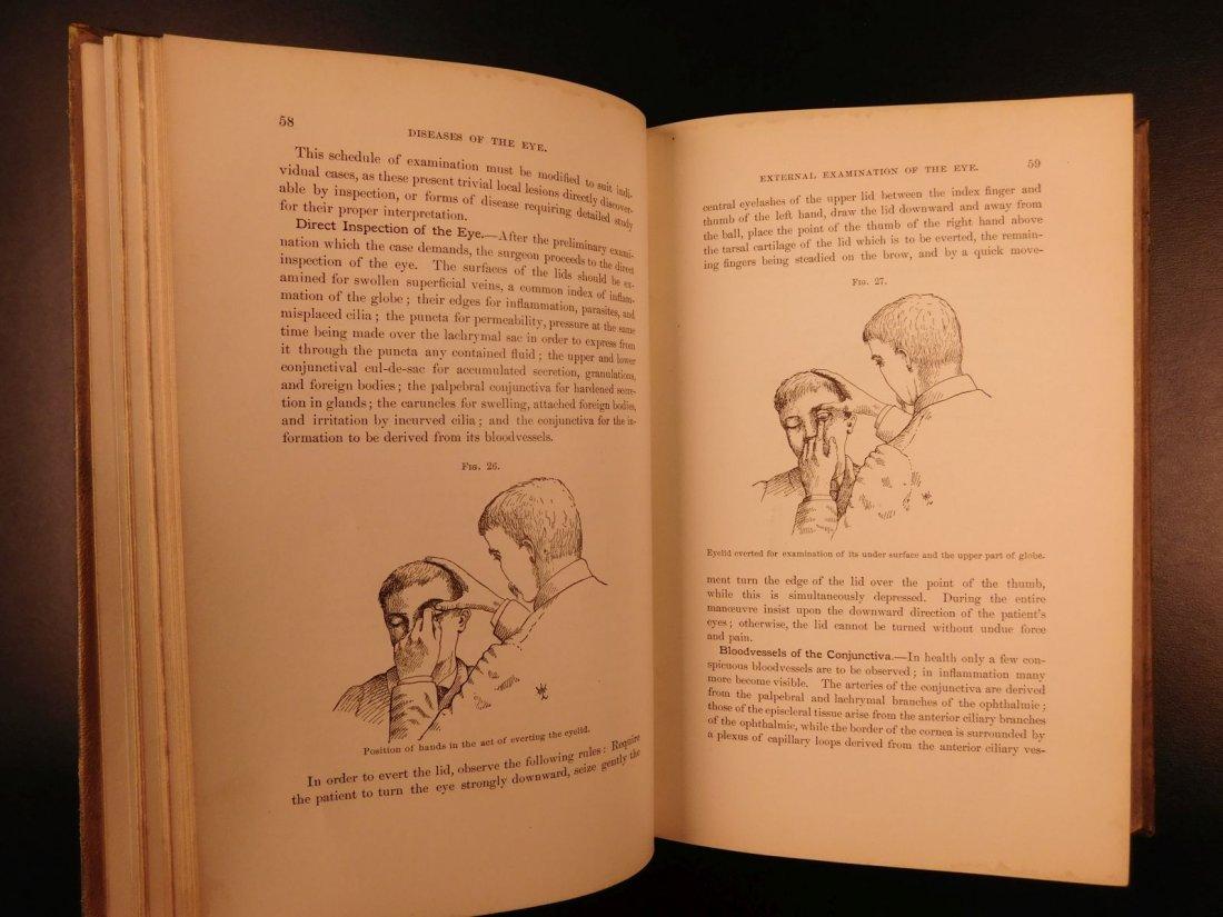 1892 1ed Diseases of Eye Ophthalmology Schweinitz - 7