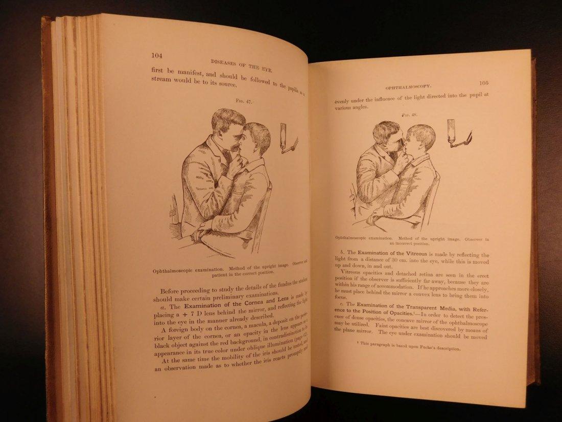 1892 1ed Diseases of Eye Ophthalmology Schweinitz - 8