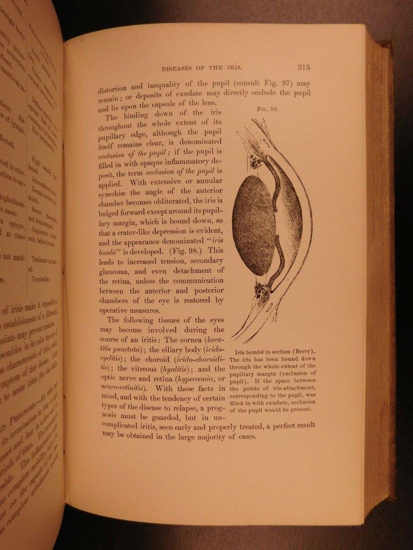 1892 1ed Diseases of Eye Ophthalmology Schweinitz - 9
