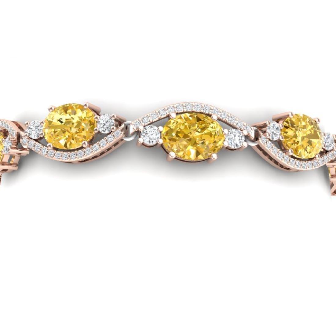 18.3 CTW Royalty Canary Citrine & VS Diamond Bracelet