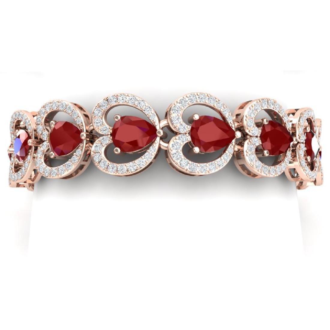 32.15 CTW Royalty Ruby & VS Diamond Bracelet 18K Rose
