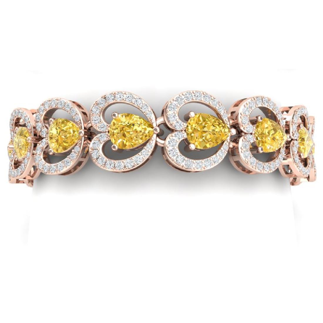 29.14 CTW Royalty Canary Citrine & VS Diamond Bracelet
