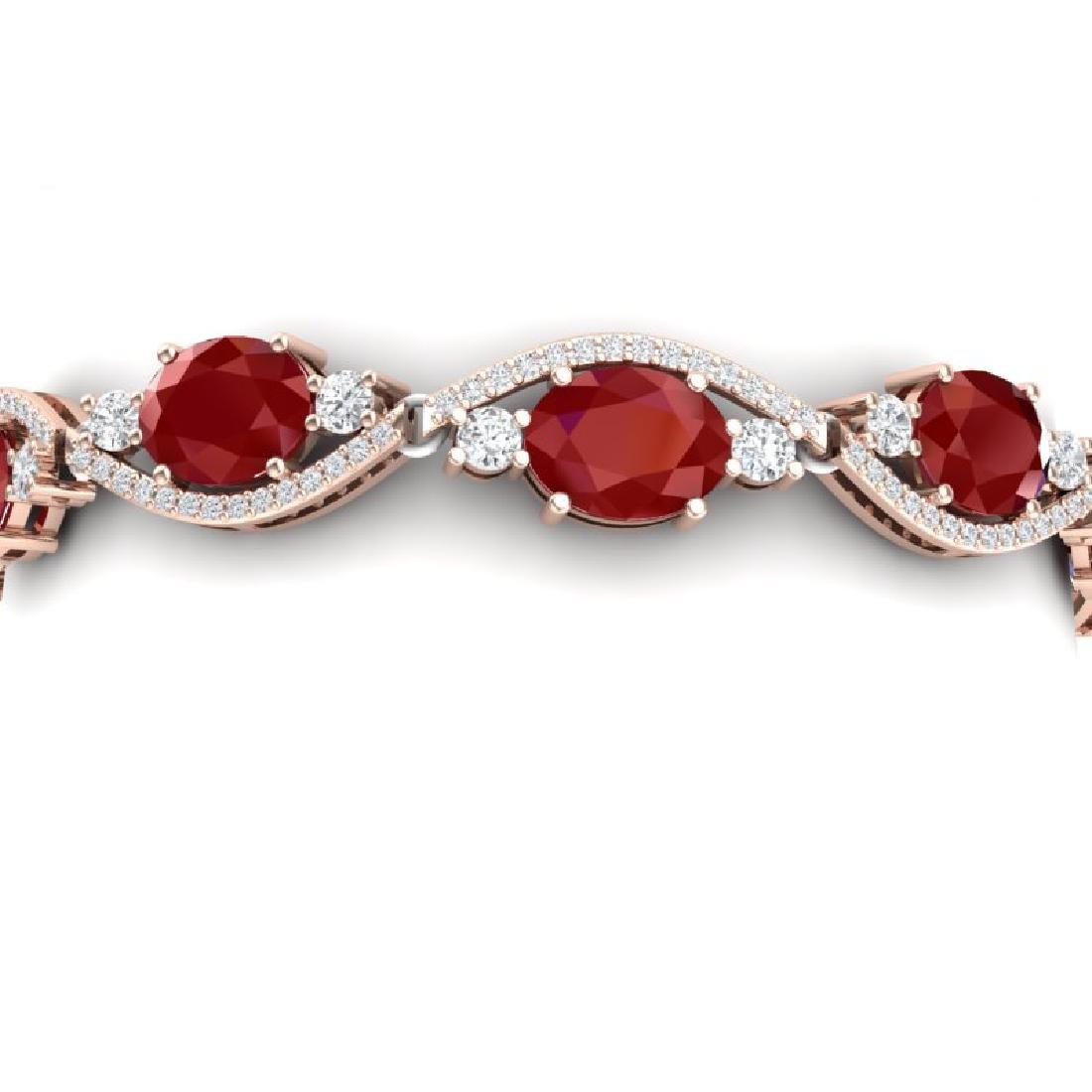 22.15 CTW Royalty Ruby & VS Diamond Bracelet 18K Rose
