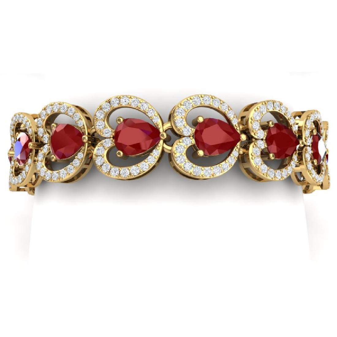 32.15 CTW Royalty Ruby & VS Diamond Bracelet 18K Yellow