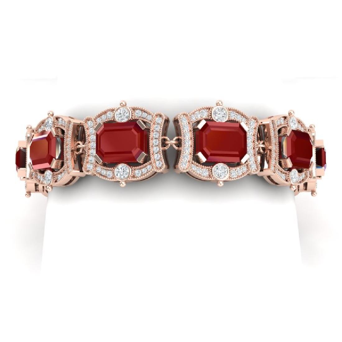 43.87 CTW Royalty Ruby & VS Diamond Bracelet 18K Rose