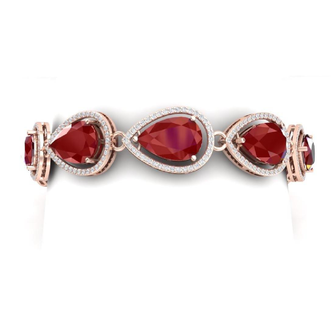 28.31 CTW Royalty Ruby & VS Diamond Bracelet 18K Rose