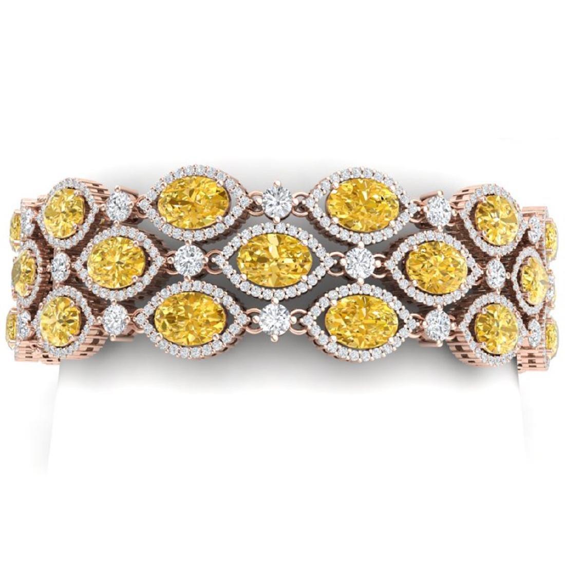 43.84 ctw Canary Citrine & VS Diamond Bracelet 18K Rose