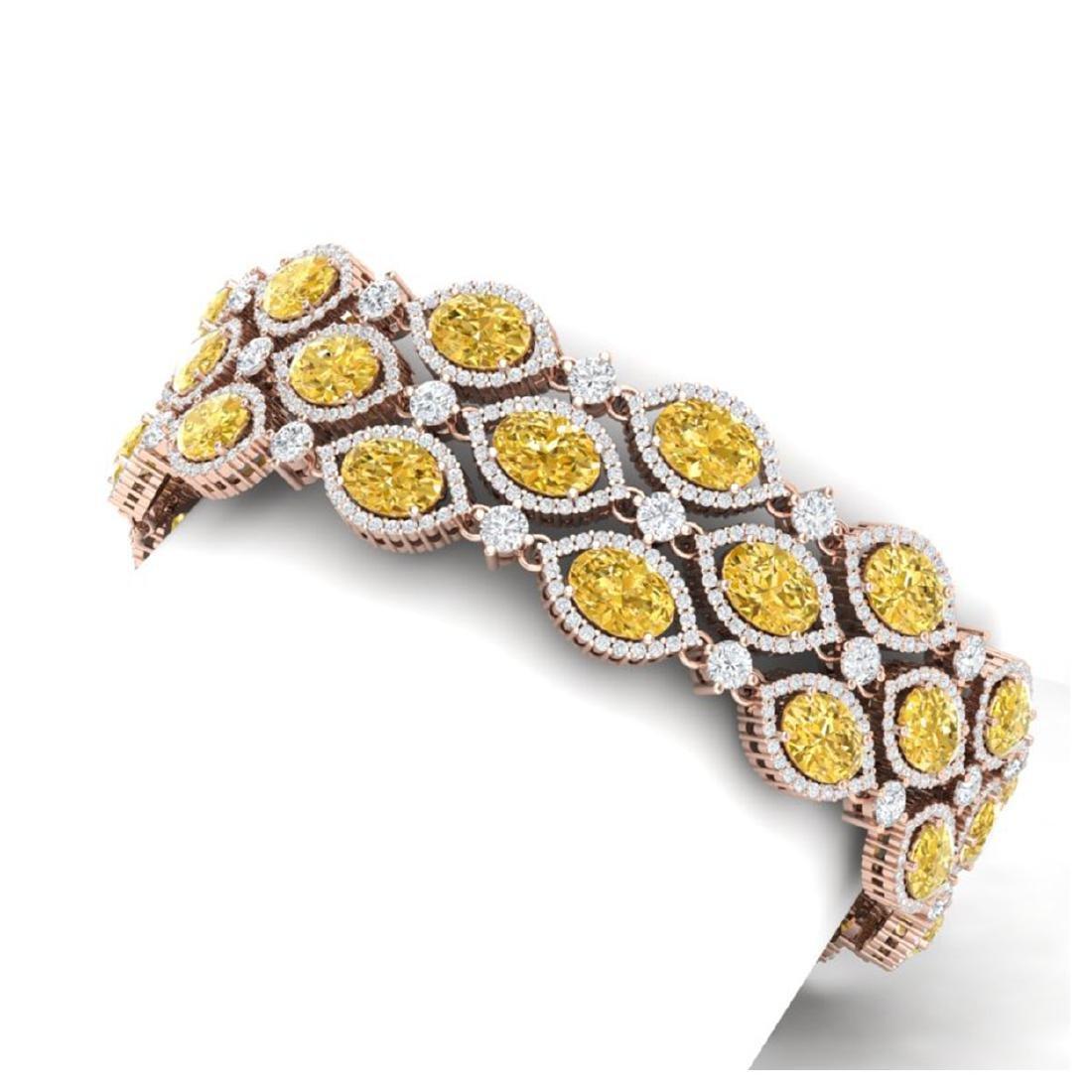 43.84 ctw Canary Citrine & VS Diamond Bracelet 18K Rose - 2
