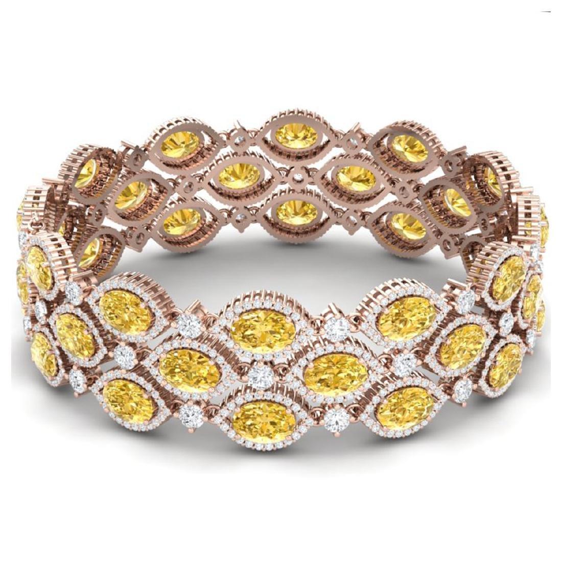 43.84 ctw Canary Citrine & VS Diamond Bracelet 18K Rose - 3