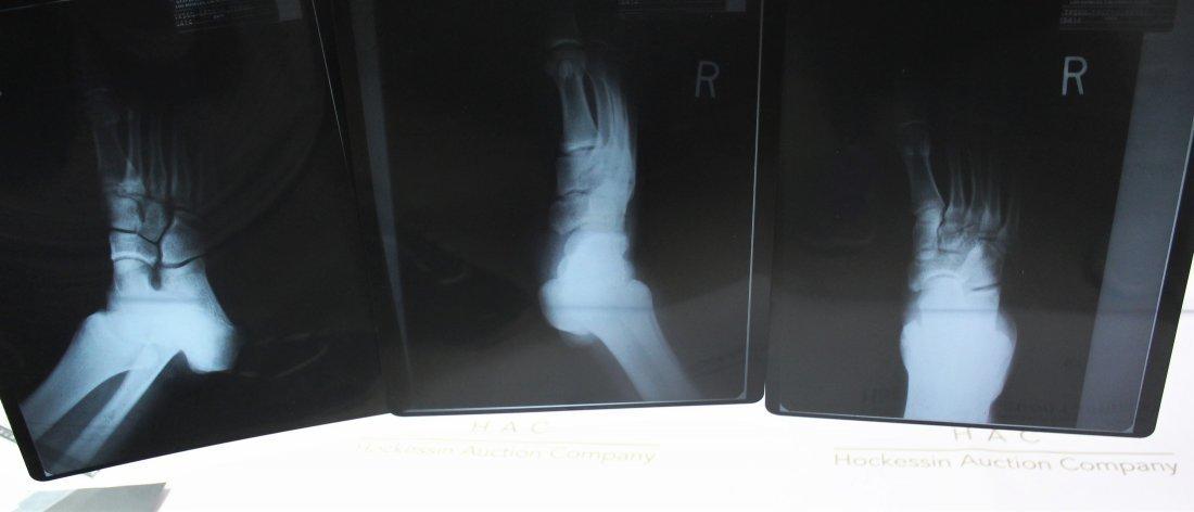 (3) Michael Jackson Foot X-Rays