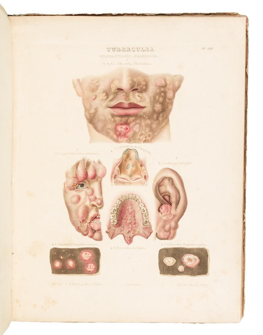 Traité des Maladaies de la Peau. Atlas. - 4