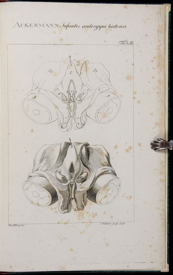 2002: Infantis Androgyni Historia et Ichnographia 1805
