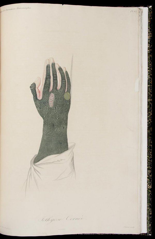 2006: Alibert on Skin Diseases with colored plates 1833