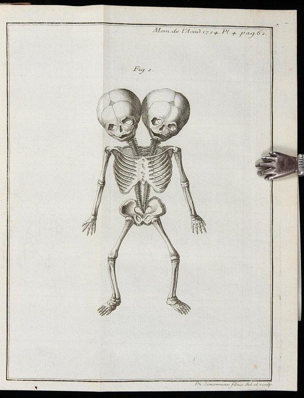 2111: 15 Teratolgy Offprints 1693-1776