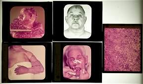 394: horrific skin diseases and other deformities